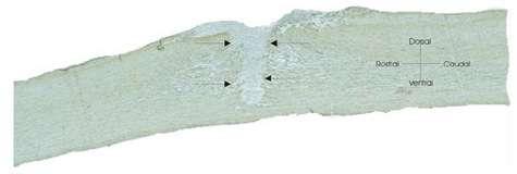 Deux semaines après une blessure médullaire on constate la formation d'une cicatrice qui bloque la repousse axonale, empêchant ainsi la régénération de la moelle épinière.