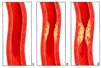 L'artériosclérose est une dégénérescence des artères. © prevention.ch