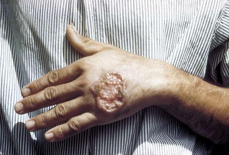 Leishmaniose cutanée de la main. © CDC, DP