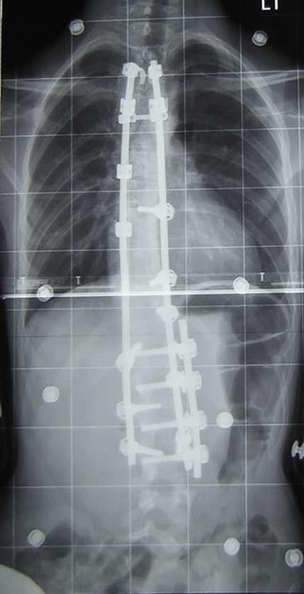 Radiographie d'une scoliose dorso-lombaire après opération. La courbe thoracique et la courbe lombaire ont été réduites. © Dr Junge, Wikipedia, DP