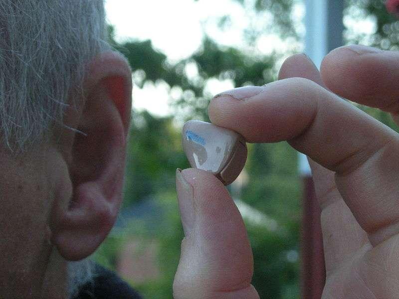 La presbyacousie est la première cause de surdité en France. Le seul traitement possible consiste à amplifier les sonorités par l'intermédiaire de prothèses auditives. © Jonas Bergsten, Wikipédia, DP