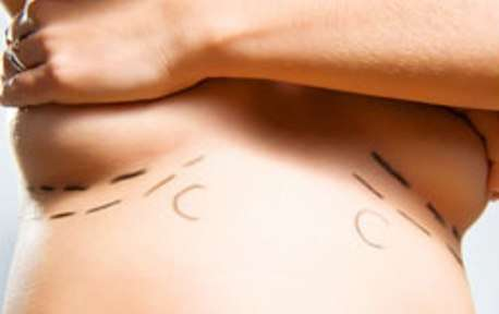Si le risque de cancer n'est pas accru, le gouvernement préconise tout de même l'explantation des prothèses mammaires. © Benko Szolt, Fotolia