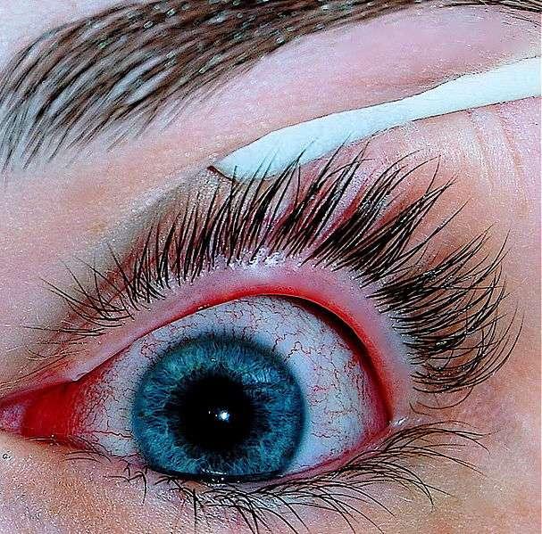 La conjonctivite allergique occasionne surtout des yeux rouges, associés à un sentiment d'irritation. © Joyhill09, Wikipédia, cc by sa 3.0