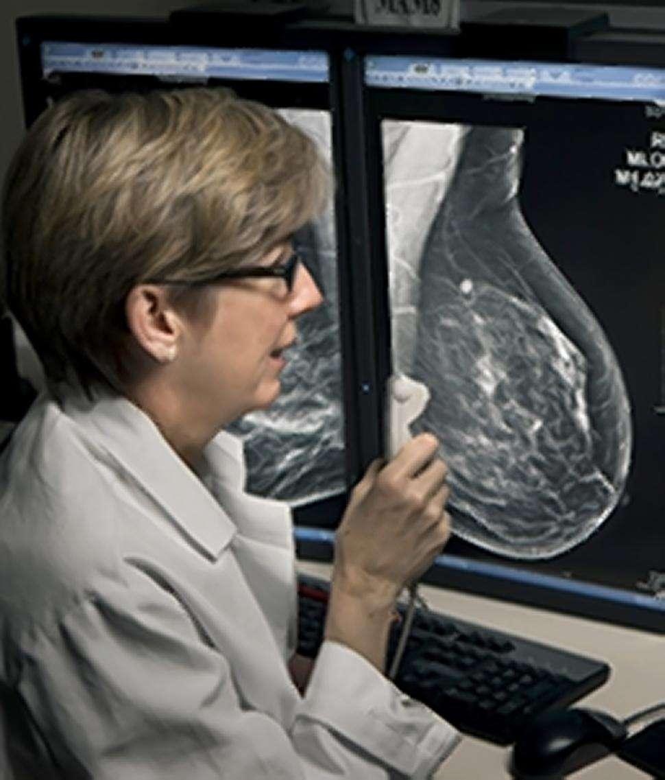 Après avoir subi une mastectomie, 30 % des femmes ont recours à une reconstruction mammaire. © DR
