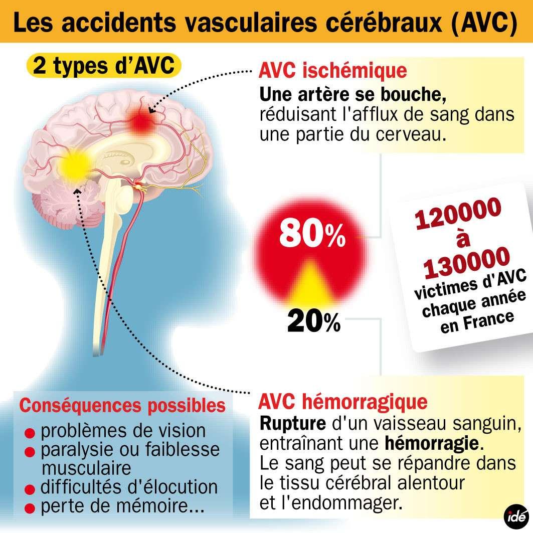 Il existe deux types d'accident vasculaire cérébral : l'AVC ischémique et l'AVC hémorragique. On en compte 1 toutes les 4 minutes en France. © idé