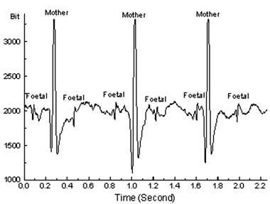 Le signal provenant des battements du cœur maternel diffère significativement de celui provenant du fœtus. Une analyse de forme par un système électronique peut séparer les deux. Crédits : Monica Healthcare