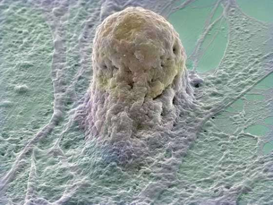 Cellule souche embryonnaire humaine se développant sur une couche de fibroblastes. Crédit : DR