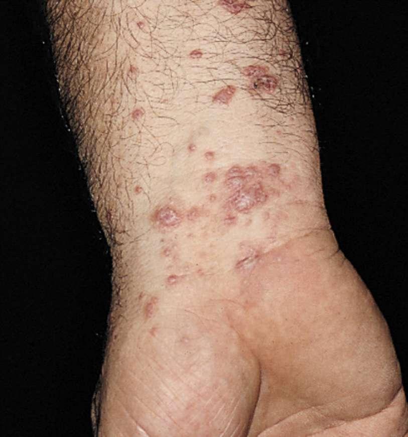 Chaque année, 60.000 Français déclarent les symptômes du psoriasis. Malheureusement, aucun traitement ne permet de s'en remettre totalement et les solutions proposées sont parfois plus contraignantes que la maladie elle-même. © The Apologue, Flickr, cc by nc nd 2.0