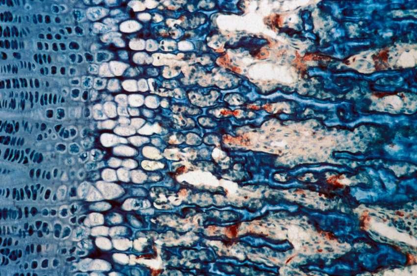 Zone de croissance et de résorption de l'os, avec, en rouge, les ostéoclastes, les cellules qui favorisent la dégradation du tissu osseux. À l'inverse, la formation de l'os est réalisée par les ostéoblastes. Le système est en équilibre dynamique. Lorsque cet équilibre vient à être rompu, des pathologies se déclarent. Par exemple, si la dégradation surpasse la croissance, les patients souffrent d'ostéoporose. © J. P. Roux, Inserm