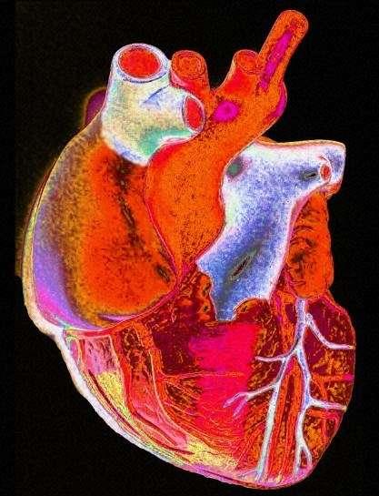 Le cœur et les vaisseaux sanguins peuvent pâtir d'une consommation forte d'ibuprofène ou de diclofénac sur une longue période. Il faut donc bien se renseigner sur l'utilisation de ces médicaments. © Gordon Museum, Wellcome Images, Flickr, cc by nc nd 2.0