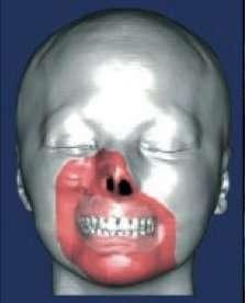 Schéma de la première greffe partielle de visage. © DR