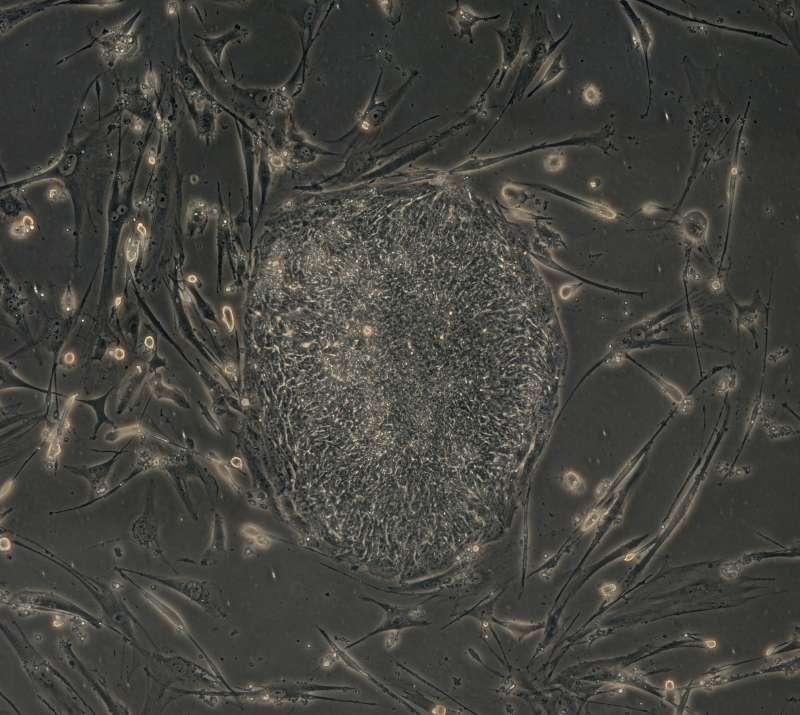 Ces cellules de peau humaine se sont transformées en cellules totipotentes après l'introduction de quatre gènes. © Junying Yu