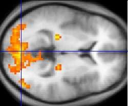 L'imagerie par résonance magnétique fonctionnelle (IRMf) permet d'observer l'activité du cerveau lors d'une stimulation. © Wikimedia Commons, DP