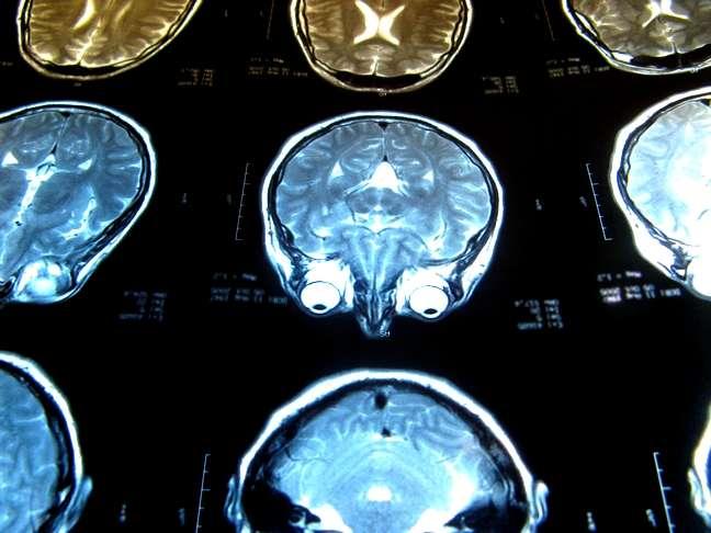 Les médecins peuvent dépister des lésions cérébrales par imagerie par résonance magnétique (IRM). Ces blessures pourraient-elles être réparées grâce à la thérapie génique ? © PhOtOnQuAnTiQuE, Flickr, cc by nc nd 2.0