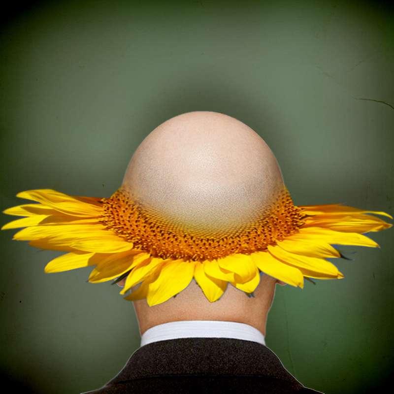 La calvitie, ou alopécie, correspond à la perte accélérée des cheveux. Nous avons entre 100.000 et 150.000 cheveux et il est normal d'en perdre 40 à 100 par jour. Si le nombre de cheveux perdus est plus important, cela peut être le début de la calvitie. Avec les progrès de la recherche, l'espoir d'un traitement fait son chemin. © jaci XIII, Flickr, cc by sa 2.0