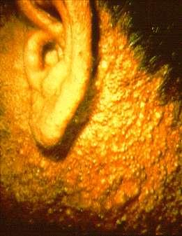 Symptômes de chloracné chez une personne travaillant dans la production d'herbicides. © Occupational Dermatoses - CDC/NIOSH, Wikimedia domaine public