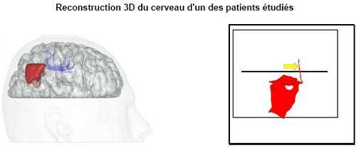 En rouge, l'exérèse chirurgicale. En violet, la voie pariéto-frontale dont l'inactivation a provoqué une déviation à droite en bissection de lignes (illustrée schématiquement par la figure de droite).
