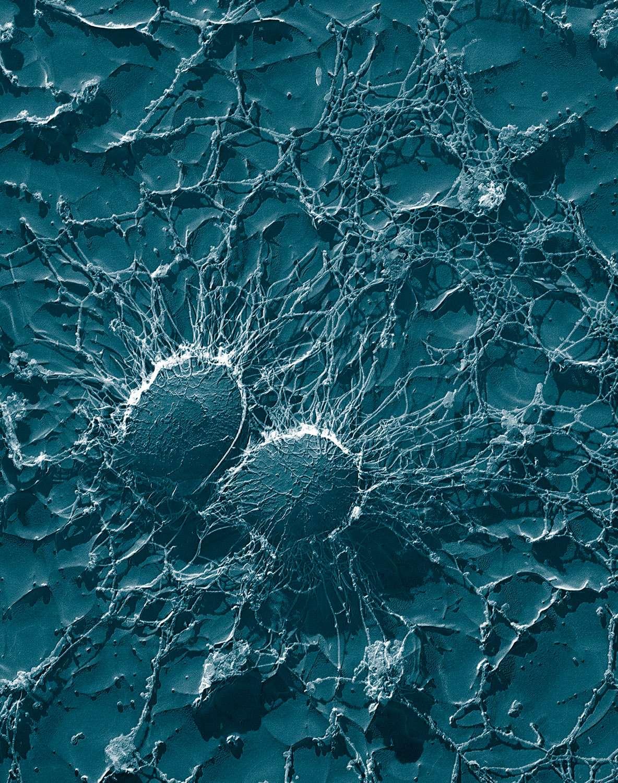 Le Staphylococcus aureus résistant à la méticilline (Sarm), ou staphylocoque doré, est une bactérie extrêmement pathogène, à l'origine de nombreuses infections nosocomiales. Parmi elles, on peut citer les infections cutanées (panaris, furoncles...) ou les septicémies dont le taux de mortalité est de 30 %. Elle a été découverte 2 ans après le début de l'utilisation de la méticilline comme antibiotique. Depuis, elle ne fait que se développer, se renforçant contre les antibiotiques. © Eric Erbe, Christopher Pooley, Wikipédia, DP