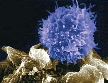 Le virus du Sida ne serait plus détecté chez un patient encore séropositif il y a trois ans. © vulgariz.com