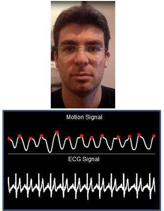 Cette capture issue de l'analyse vidéo compare le relevé obtenu par l'algorithme à partir des mouvements de la tête (motion signal) avec l'électrocardiogramme (ECG signal). Les chercheurs du MIT admettent que leur technique présente une marge d'erreur de quelques battements par minute. © MIT, CSAIL