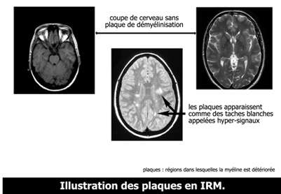 IRM et sclérose en plaques. Chez un malade atteint de SEP, des taches blanches apparaissent. © Arsep