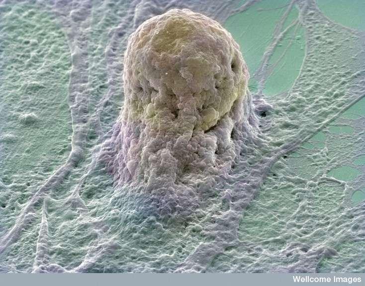 Les cellules souches embryonnaires, telles que celle à l'image, sont très utilisées dans les essais cliniques des thérapies cellulaires. Elles sont concurrencées par les cellules souches pluripotentes induites, qui pourraient permettre d'éviter les problèmes de rejet de greffe. © Annie Cavanagh, Wellcome Images, Flickr, cc by nc nd 2.0