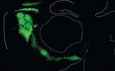 Les zones vertes de l'image correspondent à l'expression de la channelrhodopsine dans le cerveau d'une souris génétiquement modifiée. © Nature