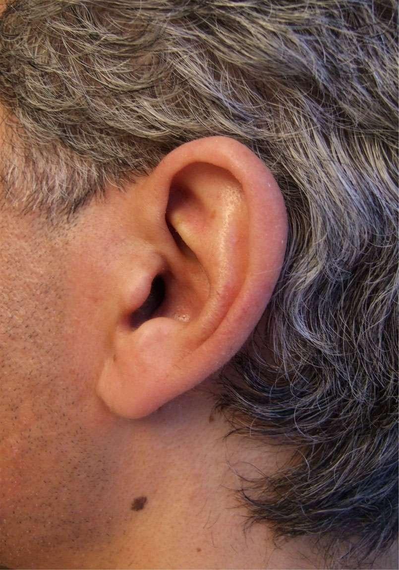 Prévention du cancer de la peau : surveillez vos grains de beauté - Source : © martine wagner - Fotolia.com