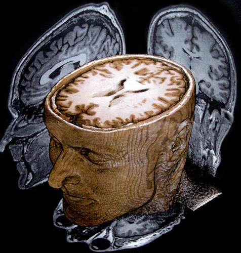 Le cerveau, constitué de six régions principales, peut renfermer jusqu'à plusieurs milliards de neurones. © banoffi, Flickr CC by nc-sa 2.0