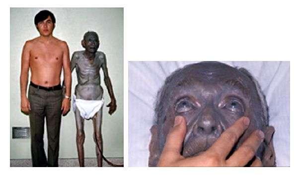 Cette image montre bien le contraste entre la couleur de peau d'une personne atteinte d'argyrie et celle d'une personne non touchée par cette maladie cutanée. Le seul responsable : l'argent. © Herbert Fred, Hendrik van Dijk, Wikipédia, cc by 2.0
