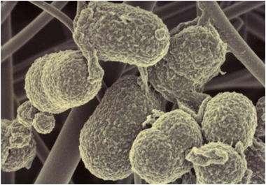 Prevotella intermedia est une des bactéries intestinales prépondérantes dans un des assemblages identifiés par les chercheurs. © DR