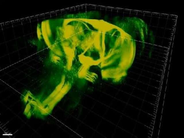 Une plongée en 3D à l'intérieur du cerveau