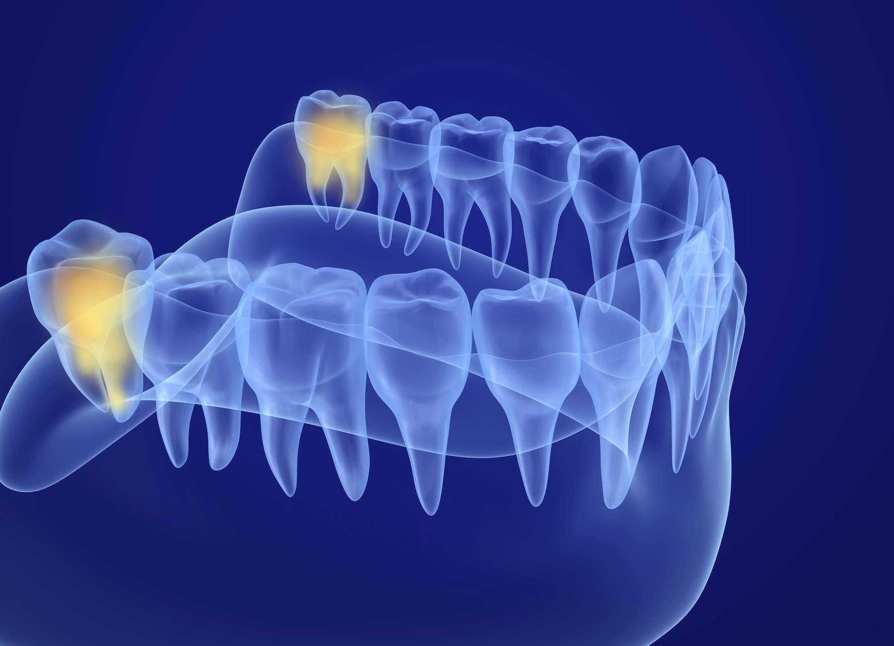 Notre crâne est plus aplati que celui des autres primates, les dents ont moins de place pour pousser. © Alexandr Mitiuc, Adobe Stock
