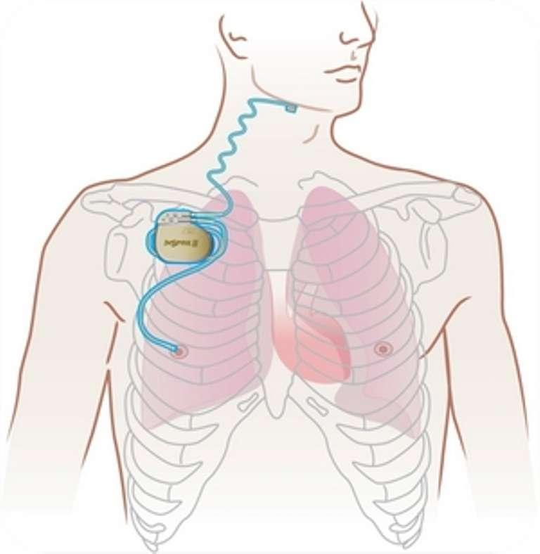 Comme les personnes souffrant de problèmes cardiaques, un pacemaker adapté améliore la qualité du sommeil des victimes d'apnées du sommeil. © Destination Santé