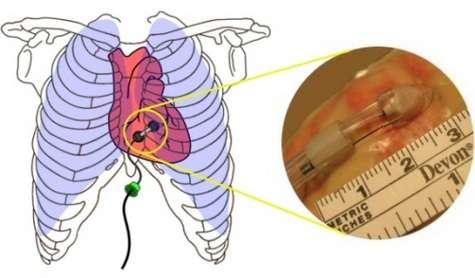 Introduit sous le sternum, ce minuscule instrument est glissé sous le péricarde et engage alors une reptation pour transporter une aiguille d'injection, une sonde de stimulation ou, un jour peut-être, des cellules souches.Crédit : The Robotic