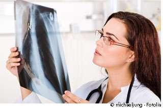 Une radiographie permet de déterminer l'existence d'une fracture du fémur. © michaeljung / Fotolia