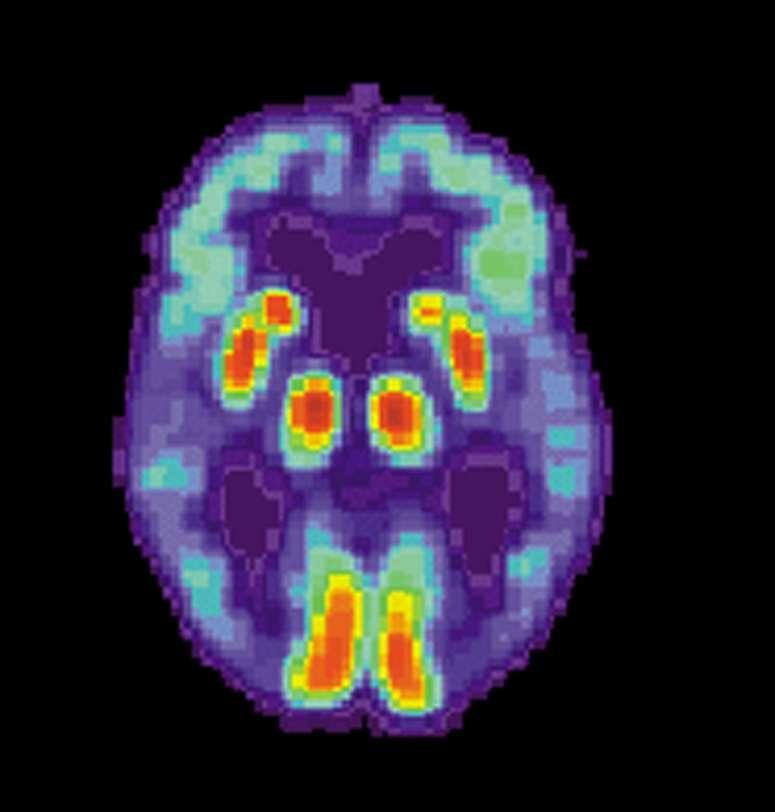 Cerveau d'un patient souffrant d'Alzheimer observé par TEP (tomographie par émission de positons) © US National Institute on Aging, Alzheimer's Disease Education and Referral Center, administration américaine, DP