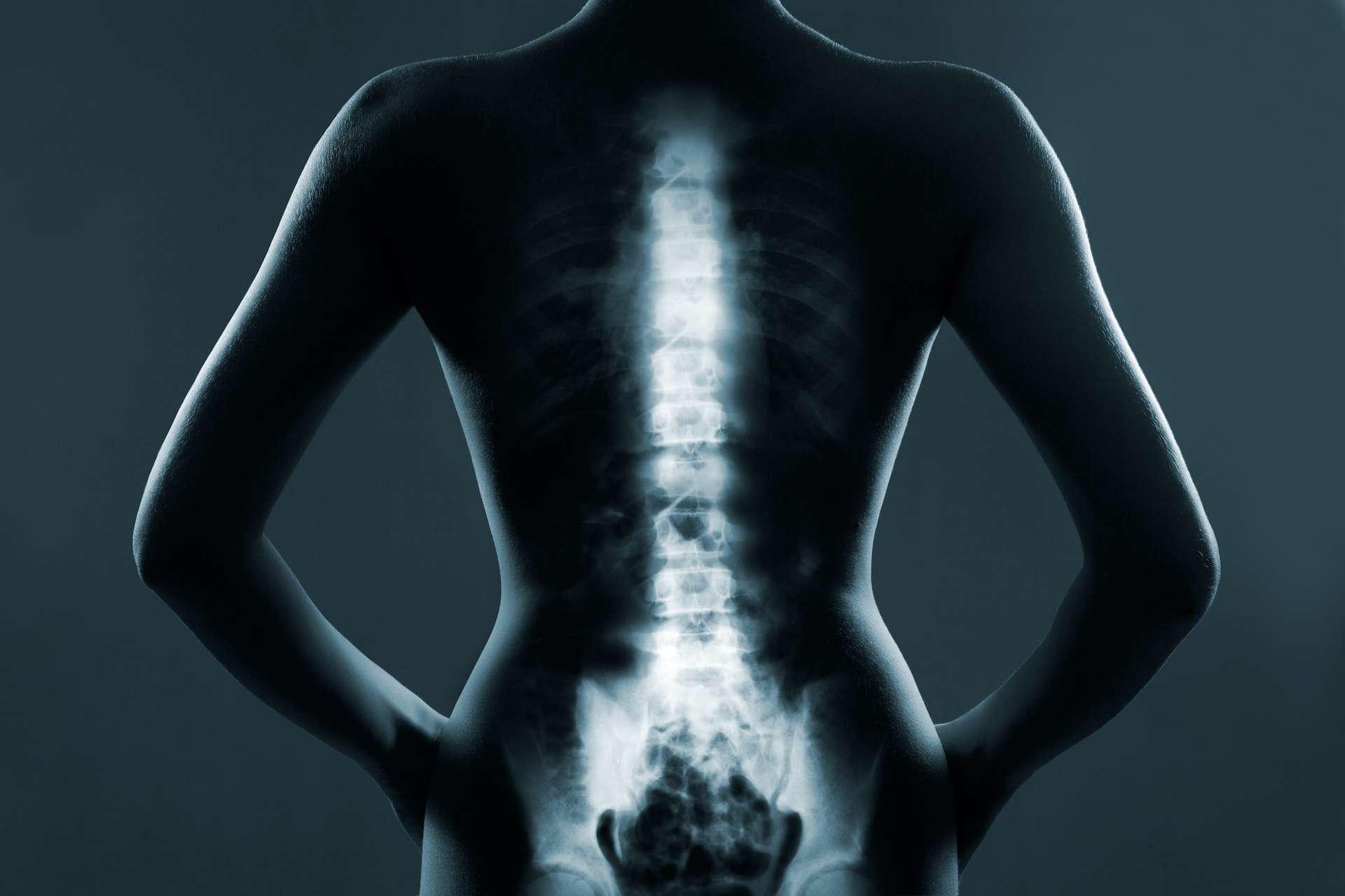 Les personnes exposées aux particules fines ont une plus faible densité osseuse. © hamara, Adobe Stock