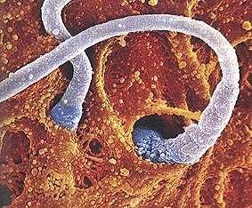 Image en fausses couleurs de la fécondation d'un ovule par des spermatozoïdes. Crédits : DR.