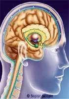 Enfin un espoir de prévenir la rechute d'un accident vasculaire cérébral ?