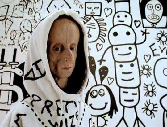 La progéria accélère le vieillissement de toutes les cellules à l'exception des neurones. Leon Botha (1985-2011), cet artiste de hip hop sud-africain atteint de la maladie, en est un exemple puisque le DJ était doté d'un esprit créatif. © euskopata, argazkiak.org, cc by sa 3.0