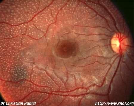 Dans neuf cas sur dix, la rétinopathie pigmentaire affecte les bâtonnets, photorécepteurs servant à la vision crépusculaire, première affectée par la maladie. Les cellules touchées, de plus en plus nombreuses, deviennent colorées et insensibles à la lumiè