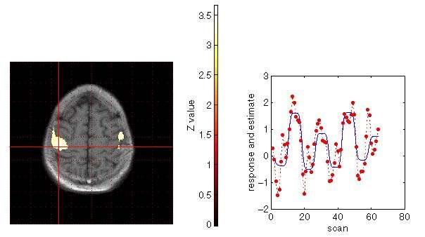 Coupe sagittale d'un cerveau humain en fMRI. Crédit UCL.