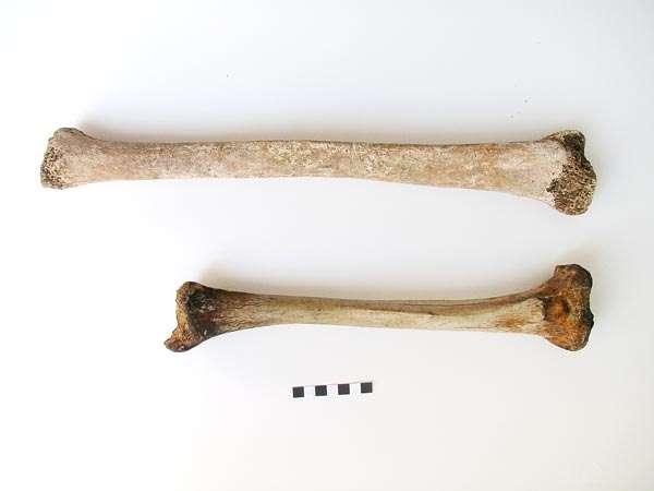 Le tibia du Romain souffrant de gigantisme (en haut) a été comparé à un os prélevé chez un individu sain ayant vécu à la même époque (en bas). La différence est notable. © Simona Minozzi, Endocrine Society