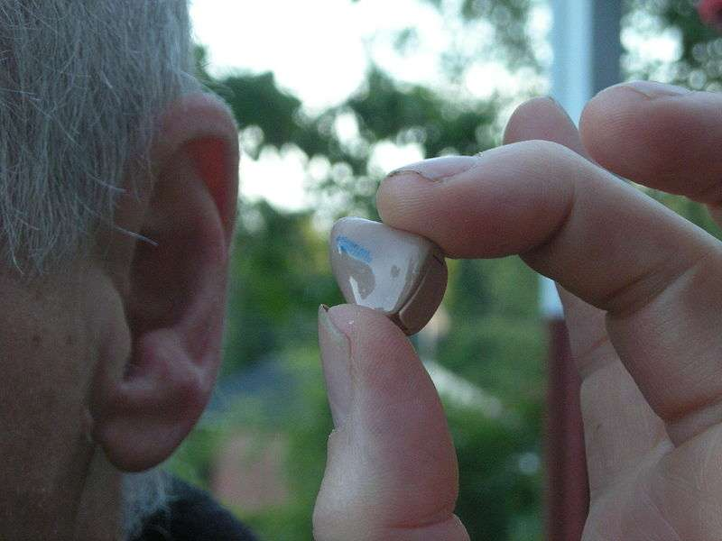 Les prothèses auditives aident les personnes malentendantes à retrouver une partie de leur audition, mais ne leur permettent pas d'avoir une ouïe fine et efficace. La thérapie génique pourrait gommer un peu ces défauts. © Jonas Bergstein, Wikipédia, DP