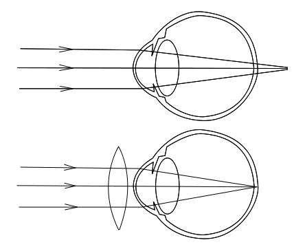 L'hypermétropie est schématisée dans le premier cas. La lumière qui arrive contre la cornée et le cristallin n'est pas suffisamment focalisée vers la rétine. Ainsi, les rayons convergent en un point situé derrière elle. Le deuxième schéma montre la situation normale.