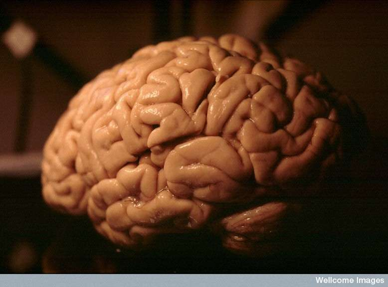 Le cerveau humain ne forme pas une surface lisse, comme c'est le cas chez la souris. Il se compose de nombreux sillons et bosses, qu'on appelle les circonvolutions, lui permettant d'augmenter la surface corticale. Ces structures seraient sous la dépendance de l'activité d'au moins un gène : Trnp1. © Heidi Cartwright, Wellcome Images, Flickr, cc by nc nd 2.0