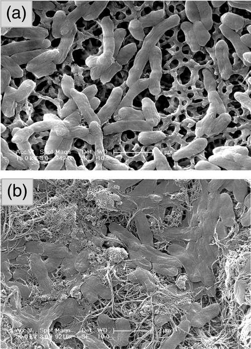 En haut, les observations au microscope électronique des E.coli sans SWCNTs dans un incubateur au bout d'une heure, en bas la même expérience mais avec des SWCNTs. Le nombre de micro-organismes a fortement chuté (Crédit : Menachem Elimelech ).