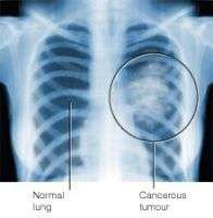 Le Sutent permet-il de retarder la croissance du cancer du poumon ?(Crédits : DogFlu.Ca)