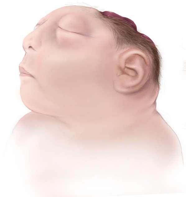 La plupart des enfants qui naissent avec une anencéphalie sont mort-nés. © www.cdc.gov